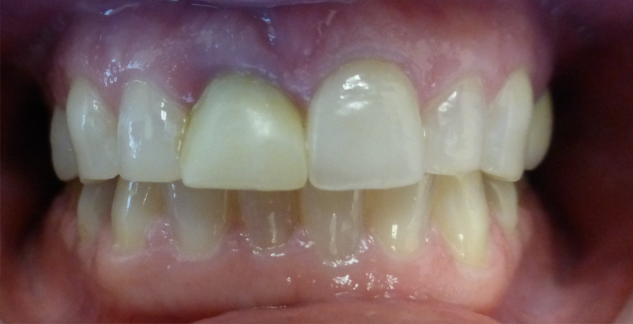Temporary implant crown RSF