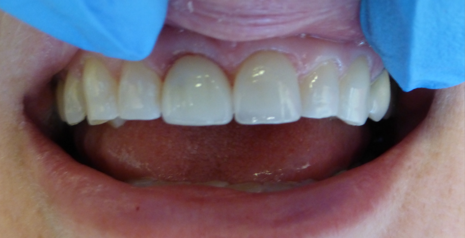 Crown placed on dental implant RSF