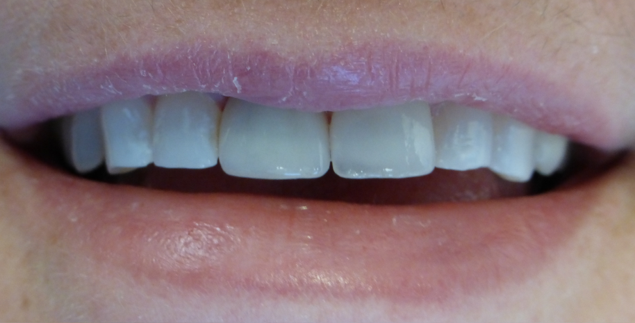 Dental implant result