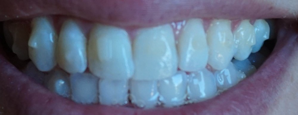 Example of the visibility of Invisalign attachments