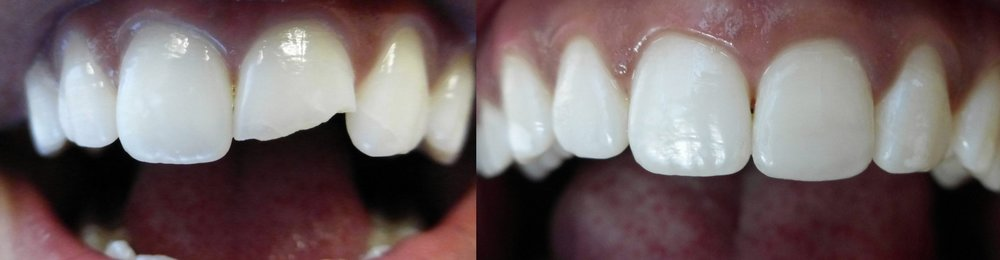 An example of cosmetic bonding done by Dr. Jennifer Dean