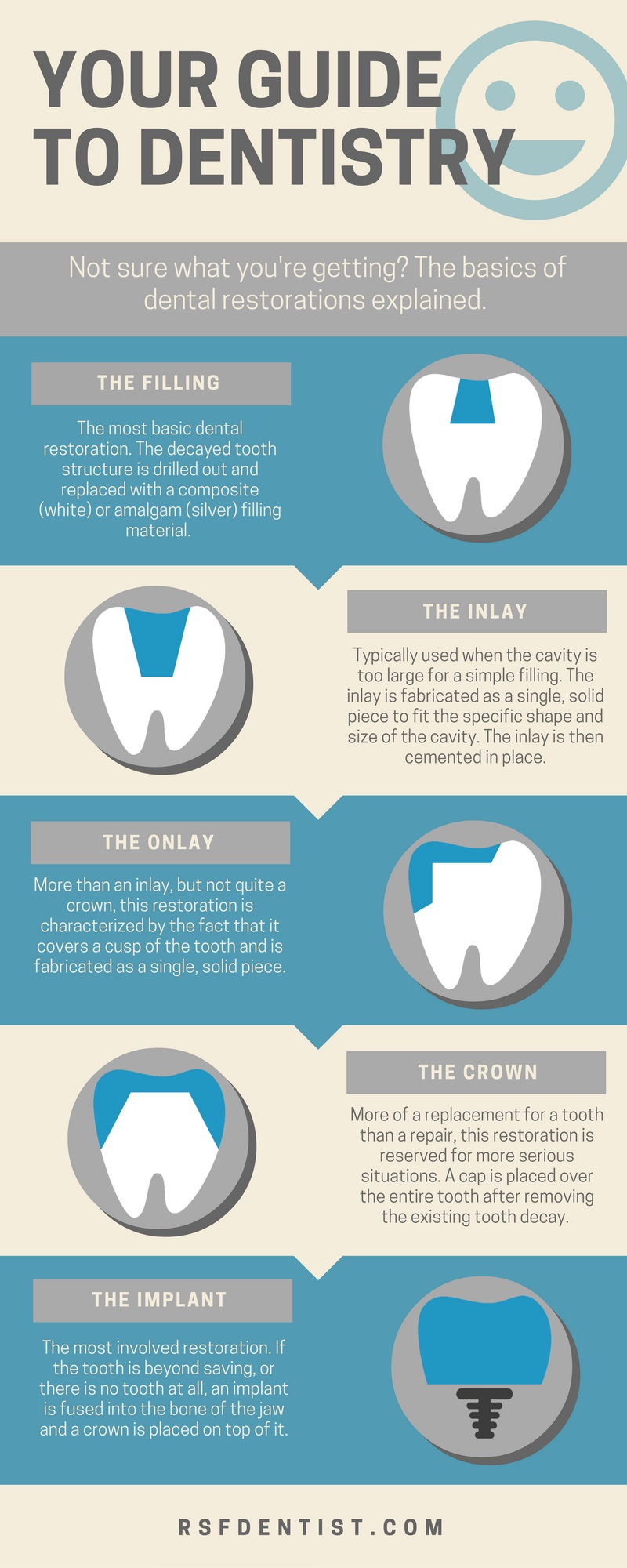 Infographic: Filling vs Inlay vs Onlay vs Crown vs Implant