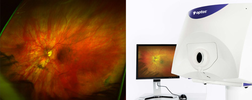 optomap_retinal_exam.jpg