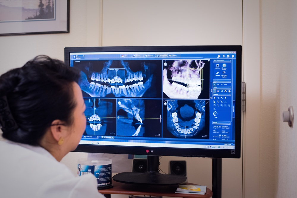 Planning with Sirona's 3D Data
