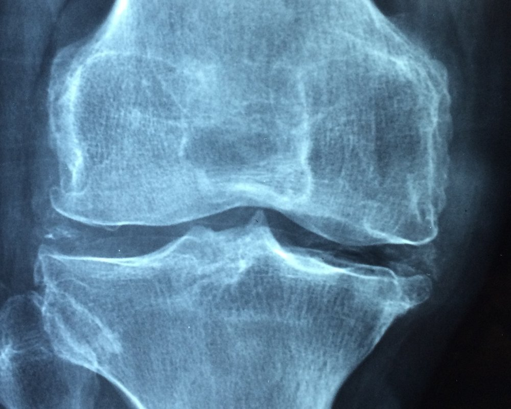 knee-1406964_1920.jpg