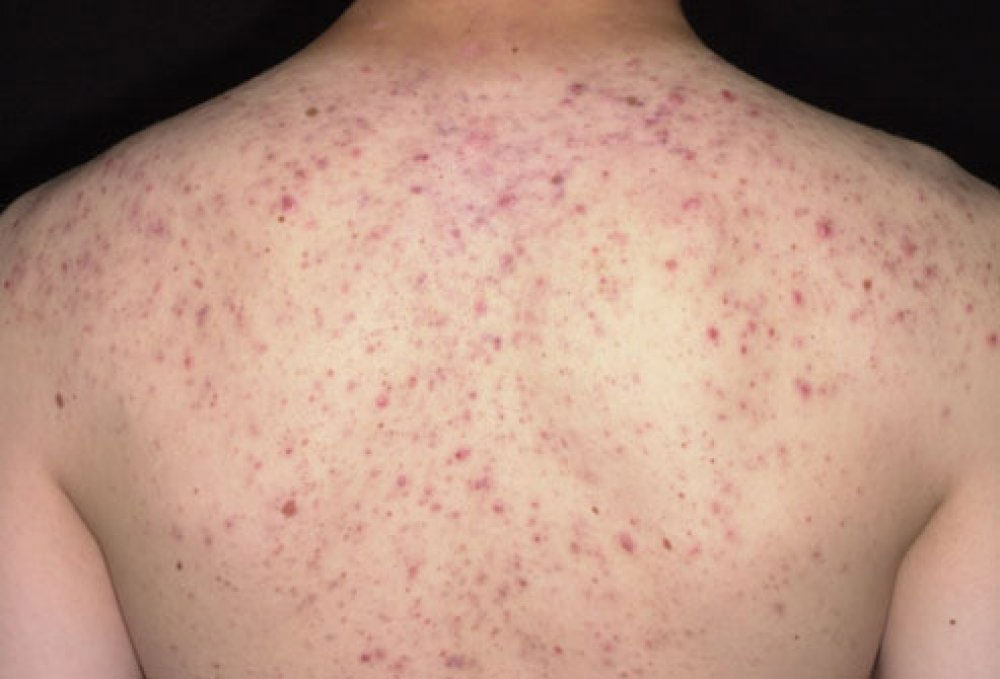 Back Acne or Bacne