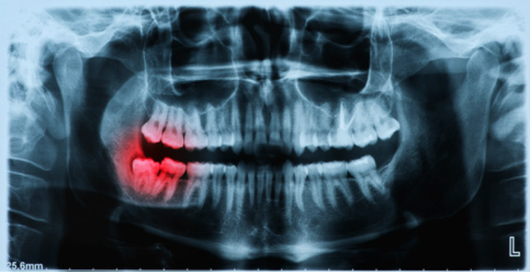 Image result for Digital Dental X-Rays Same Time and Worry