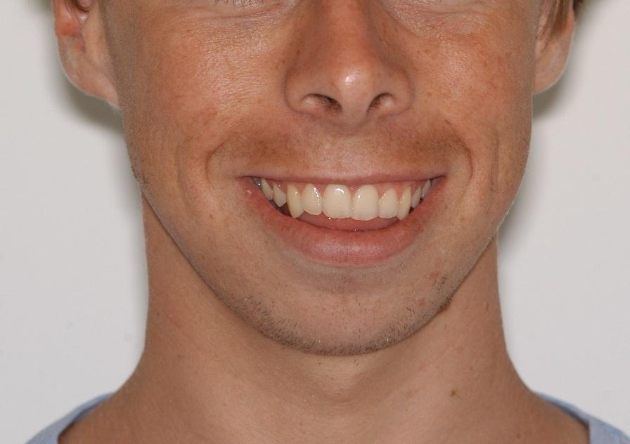 B smiling initial.jpg