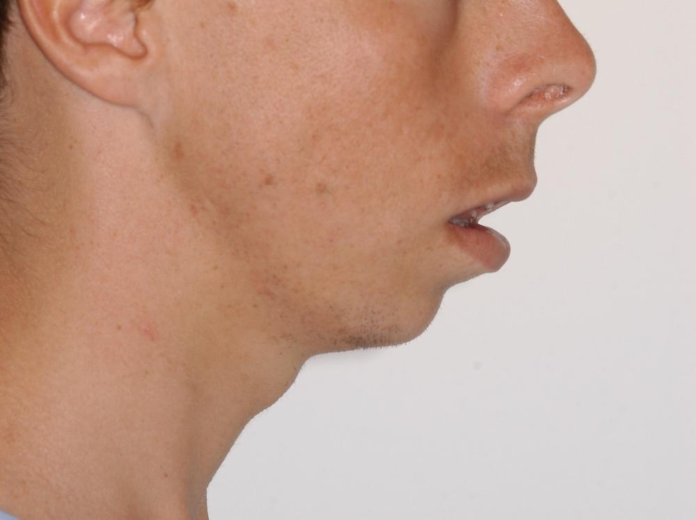 B Profile initial.jpg