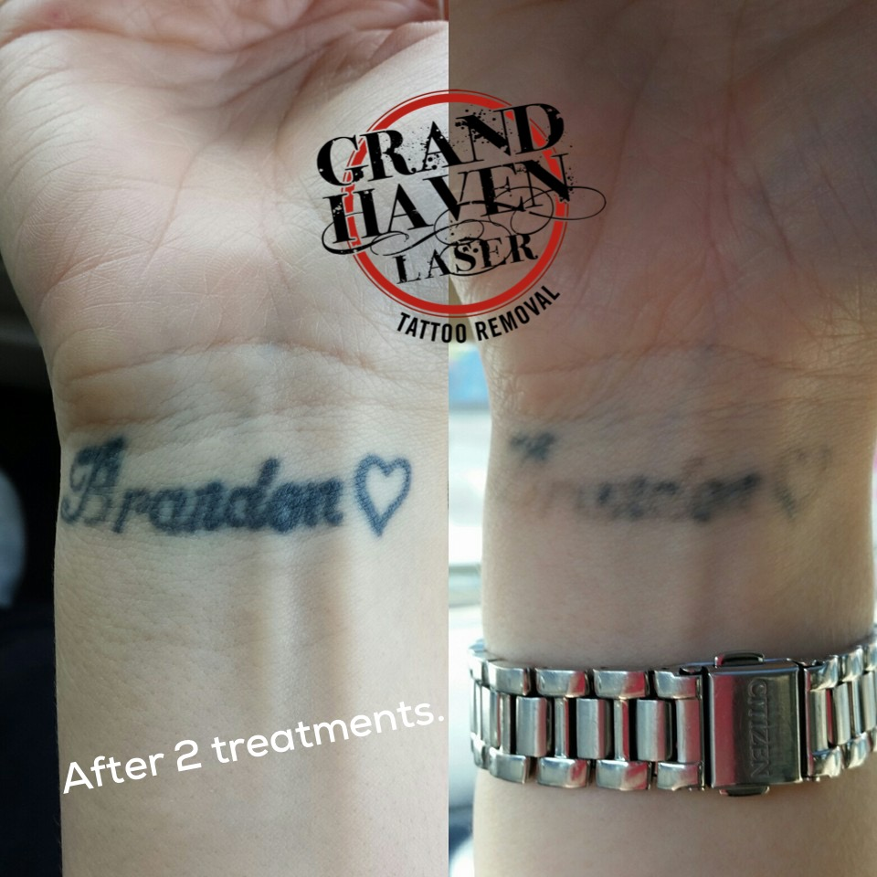 100 ink blasters precision laser tattoo tattoo for Picosure tattoo removal michigan