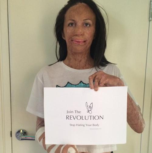 Turia Pitt joining the revolution.Source: jessicasmith.com.au