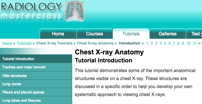 - This tutorial from the excellent website, Radiology Masterclass, demonstrates some of the important anatomical structures visible on a chest X-ray. These structures are discussed in a specific order to help you develop your own systematic approach to viewing chest X-rays.