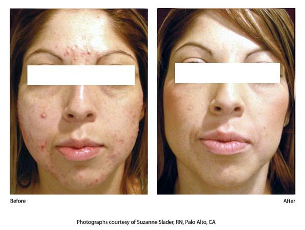 isolaz acne b4 aftr 1.jpg