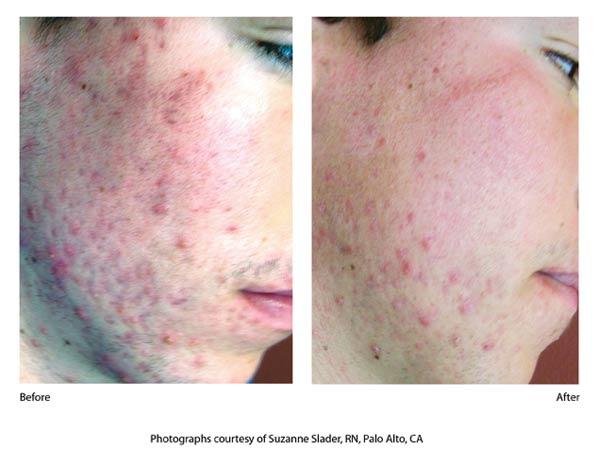 isolaz acne b4 aftr 2.jpg