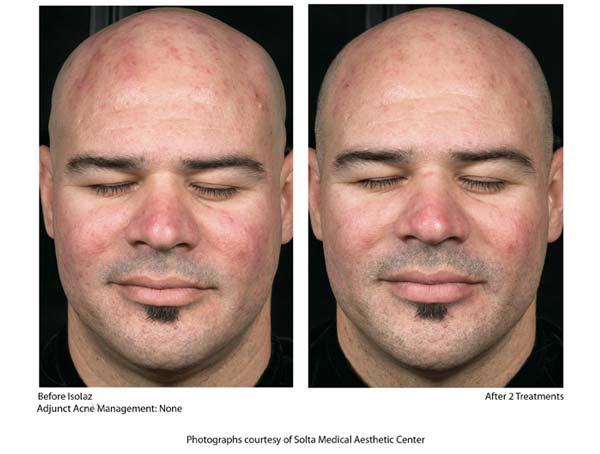 isolaz acne b4 aftr 3.jpg