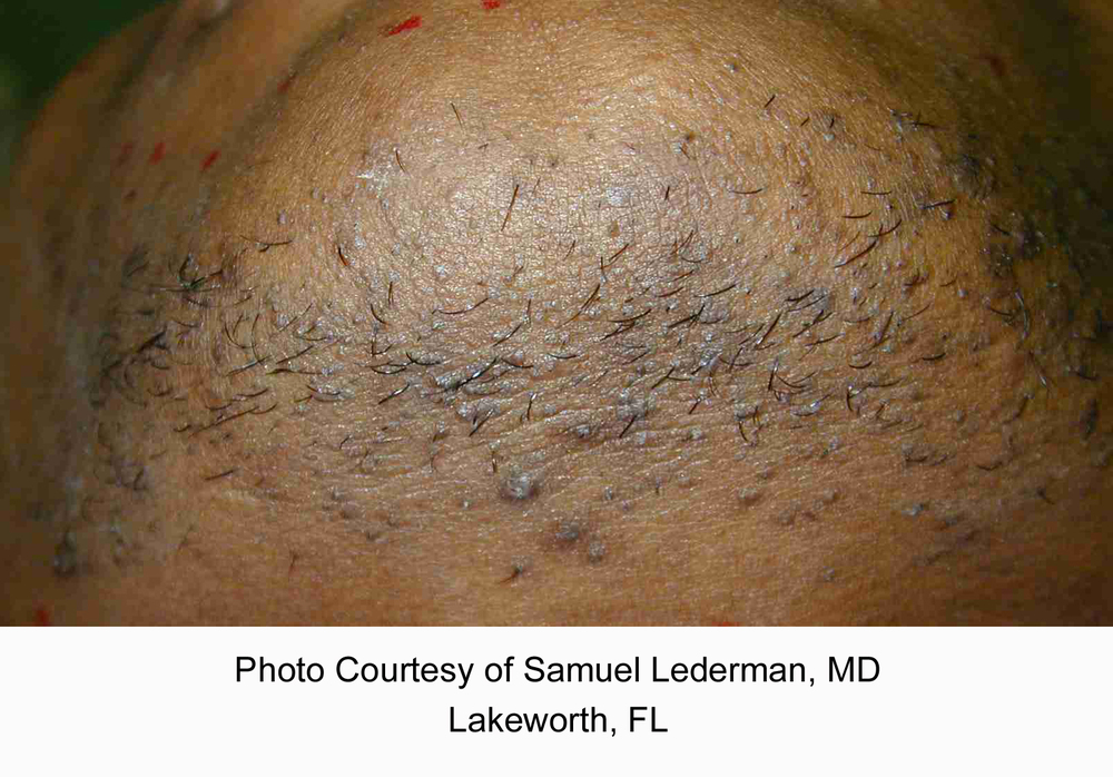 Laser Hair Removal before (chin).jpg