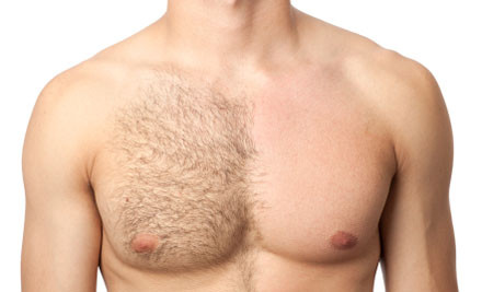 MEN-Laser Hair Removal.jpg