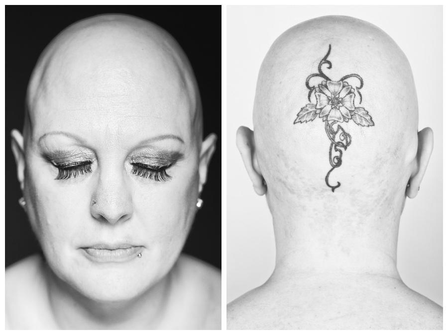 Daniel Regan, Alopecia Uncovered
