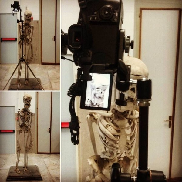 Fig: Shooting of the Acromegalic Skeleton (2.5 meters tall) at the Museum of Pathological Anatomy in University of Palermo, Italy