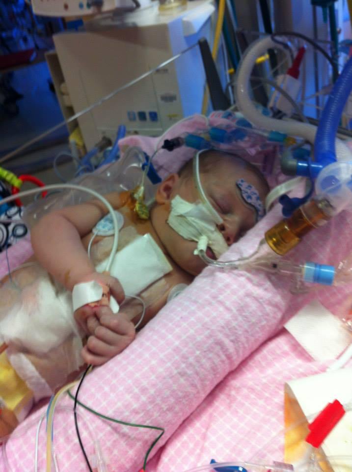 Abby with a breathing tube in her mouth, wires to monitor her vital signs, a sticker on her head to monitor her temperature, and central venous access lines to give her medications, fluids and intravenous nutrition.