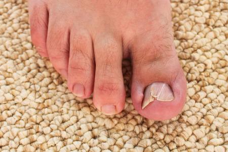 42553915_S_toe_nail_fungus_athletes_foot.jpg