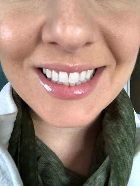 Teeth after one use!
