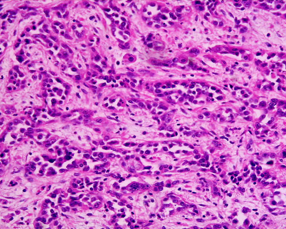 Adenocarcinoma_low_differentiated_(stomach)_H&E_magn_400x.jpg