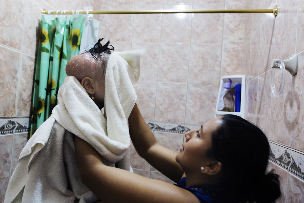 Johanna helps Michelle dry off after showering in their home. Michelle usually takes multiple showers in a day because treatment often increases her body temperature, making her sweat.