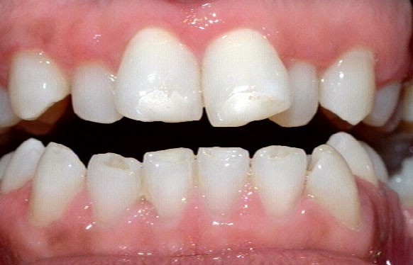 Crooked teeth are prone to gum disease