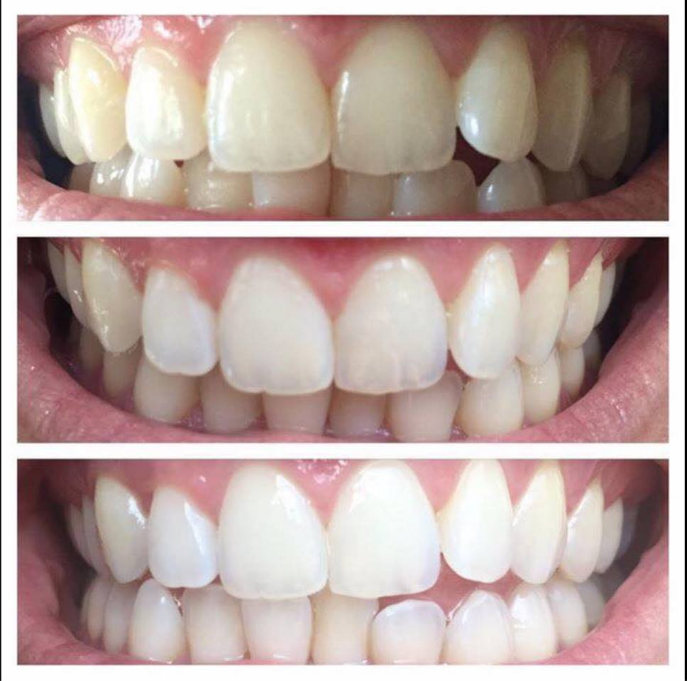 Teeth Whitening Paste- Results in 7 Days  *No Bleach *No Peroxide *No Sensitivity *No Tray