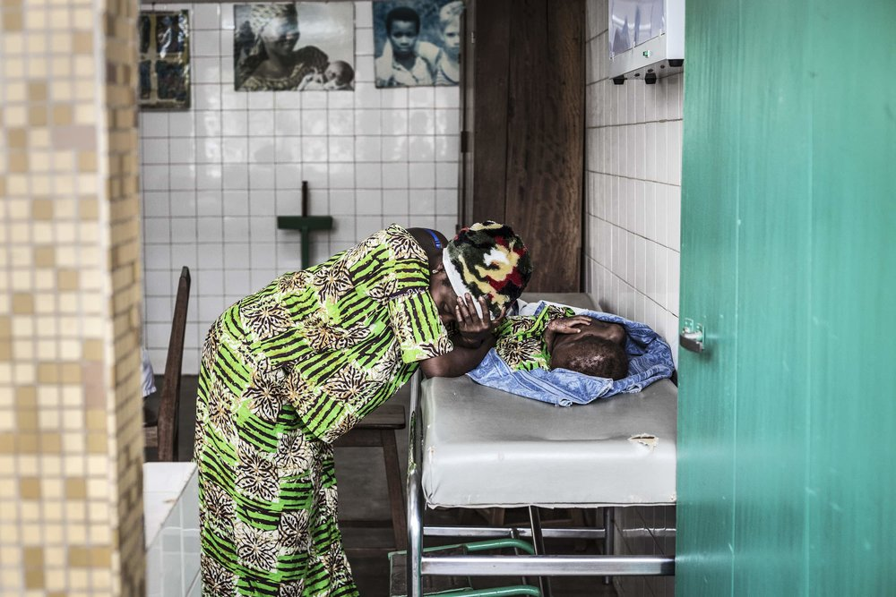 A mother in distress is standing by her malnourished child.   Malnutrition in Benin, like in many countries in sub-Saharan Africa, is currently widespread. Globally, it contributes to more than 50 percent of children's deaths.  In Benin, roughly 4 in 10 children are chronically malnourished. In the north of the country, the rate of severe malnutrition, is at 34.6 percent.