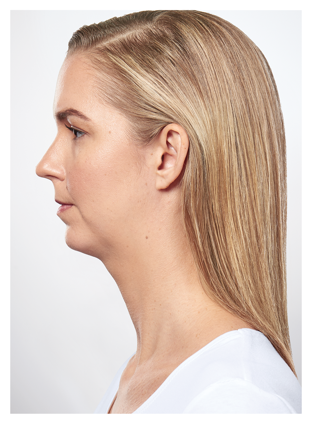POSTER KYBELLA AFTER.png