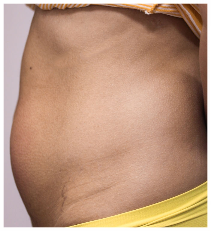 EXILIS SIDE TUMMY 3.png