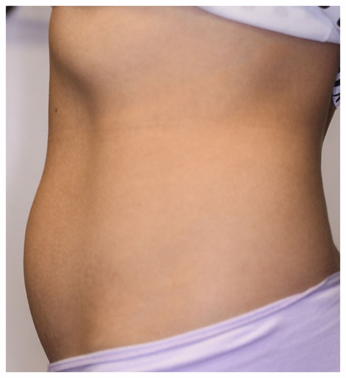 EXILIS SIDE TUMMY AFTER 3.png