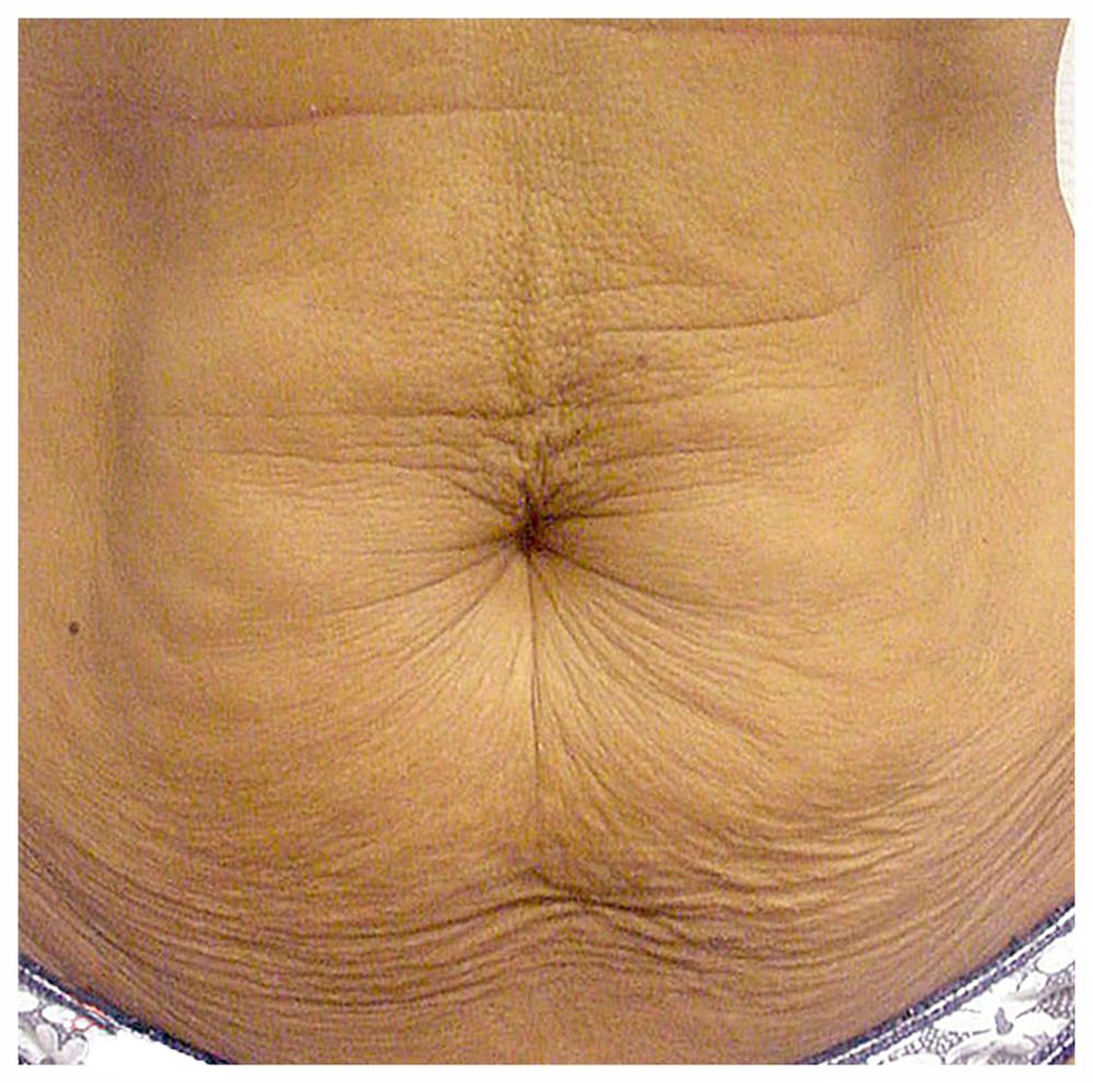 EXILIS TUMMY BEFORE 1.png