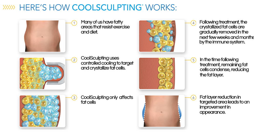 How-CoolSculpting-Works.png