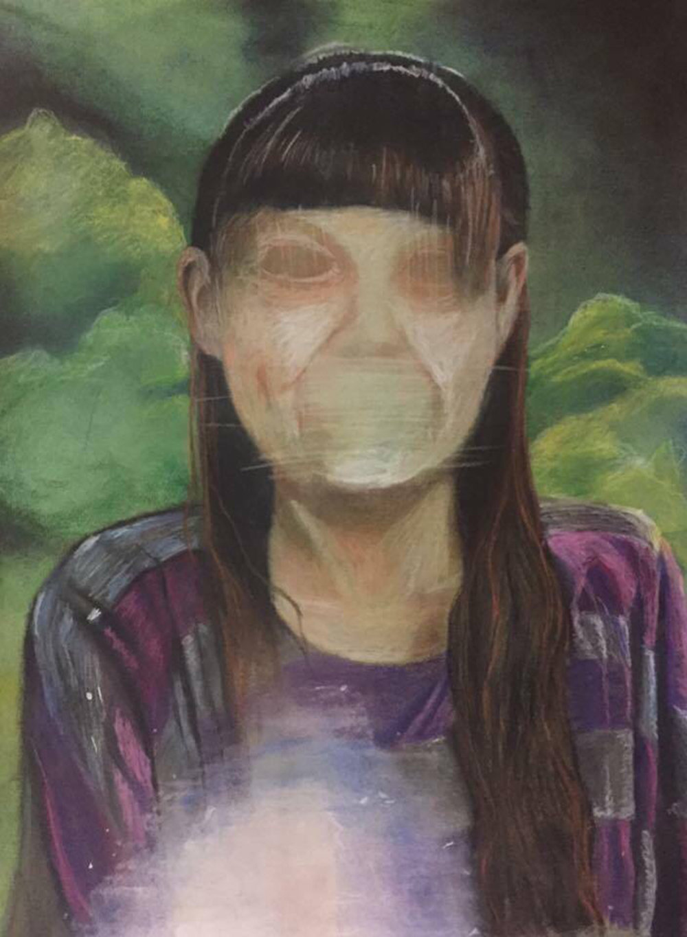 """Anna."" Portrait of a young girl with her face purposefully distorted. There is a white circle of glare in the lower foreground which is a deliberate part of the painting. The girl has long brown hair and is wearing a purple and gray striped shirt. The background behind her is green and reminiscent of clumps of trees. The surface of the work shows faint horizontal and vertical scratch-like markings over the areas of the eyes and mouth."