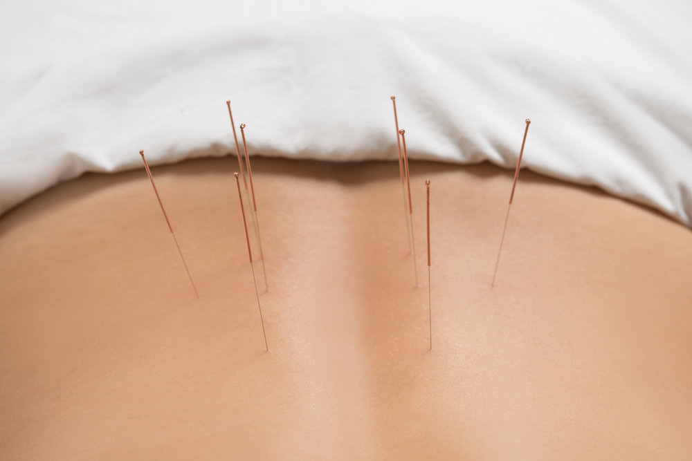 Dry Needling - Dry needling is a treatment technique used in the management of muscular or myofascial pain and dysfunction. In simple terms, the treatment involves using needling of trigger points in a muscle, with the aim of reducing muscle tension and alleviating the pain experienced from trigger points. Trigger points are an area of hypersensitivity in muscle, often felt as a taut, tender band or knot in the muscle belly. Although the same needles are used in both dry needling and acupuncture, this approach should not be confused with acupuncture. Acupuncture is based on Traditional Chinese Medicine, whereas dry needling is based on Western anatomical and neurophysiological principles.