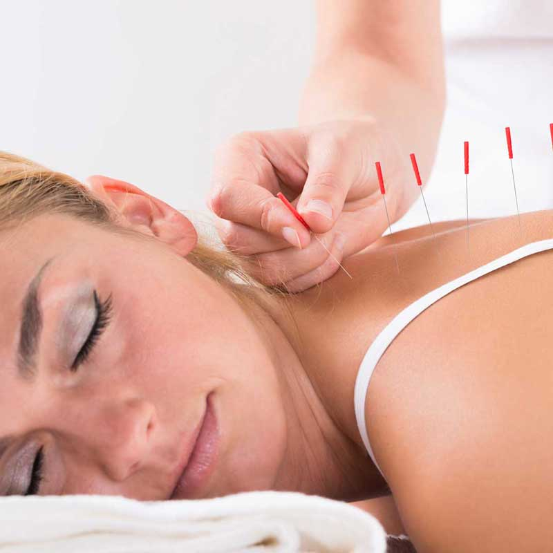 bigstock-Hand-Performing-Acupuncture-Th-108008984_sm-1024x684.jpg