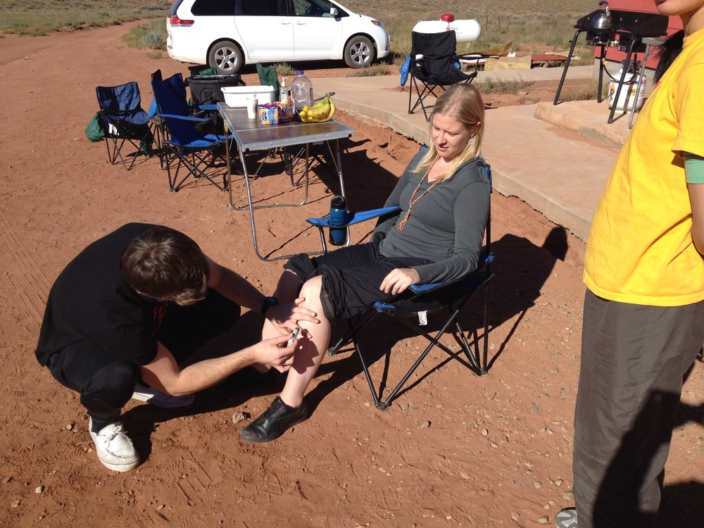 treating with moxa knee.JPG