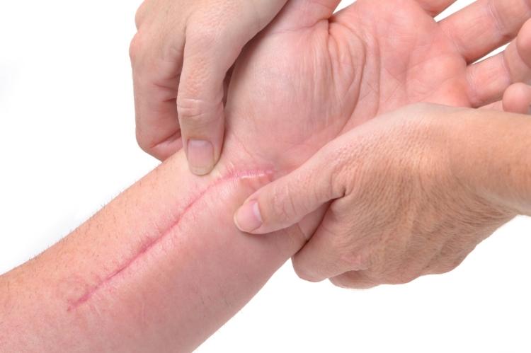 Recobrar la sensibilidad nerviosa