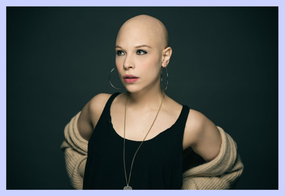 Actress Lauren Marcus after her hair loss. (Photo: Eric Woolsey; artwork by Quinn Lemmers for Yahoo Lifestyle)