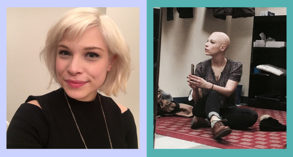 Lauren Marcus before and after being diagnosed with alopecia. (Photos: Lauren Marcus; artwork, Quinn Lemmers for Yahoo Lifestyle)