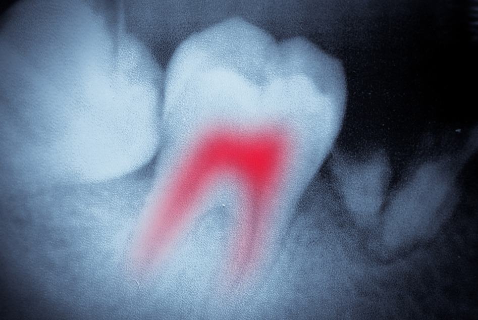 photodune-4326641-dental-tooth-xray-film-s.jpg