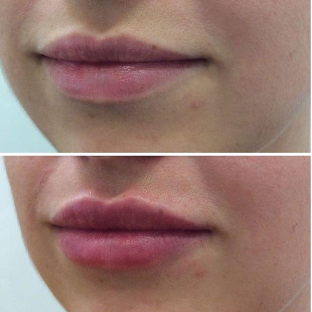// natural lip // @bridgetcorby_cosmetic_nurse #dermalfillersydney #sydneycosmeticnurse #newclinicbalmain #cosmeticdoctorsydney
