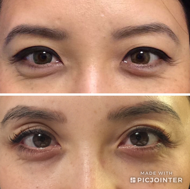 This is Dr Nguyen's personal results after 9 weeks of using LASH BOOST and bright eye complex.