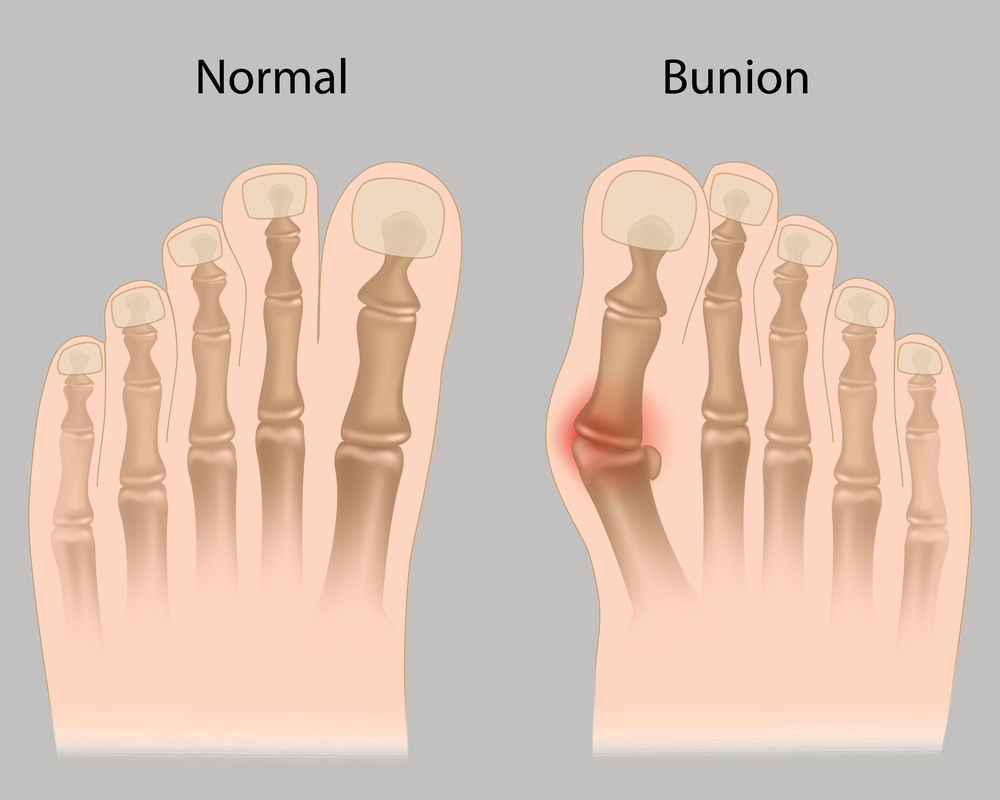 Glen Burnie and Ellicott City Podiatrist bunions