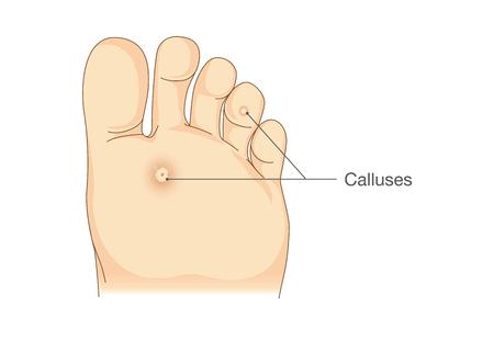 69011226_S_callus_foot_sketch.jpg