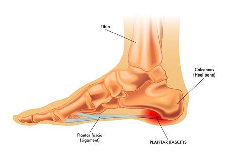 d46acb0341 Plantar Fasciitis is a Real Pain — Darlyne Cange, DPM, LLC
