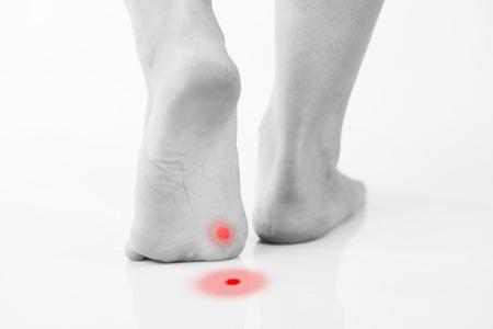 35378761_S_callus_wart_foot_pain_blister_wound.jpg